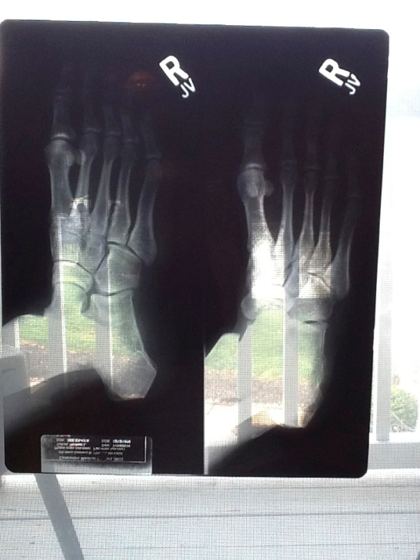 Check out the x-rays of my broken foot.  Unbelievable that this can happen simply by stepping off a curb the wrong way.  Yeesh.